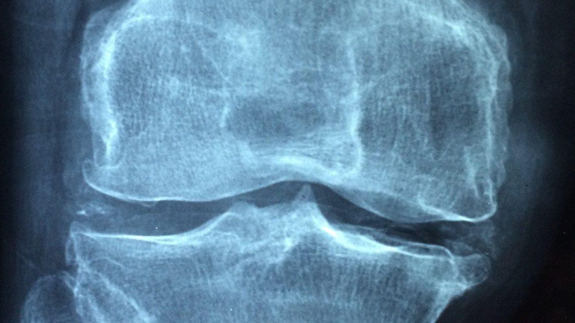 5 Questions sur les rhumatismes que les personnes atteintes de polyarthrite rhumatoïde devraient poser à leur médecin
